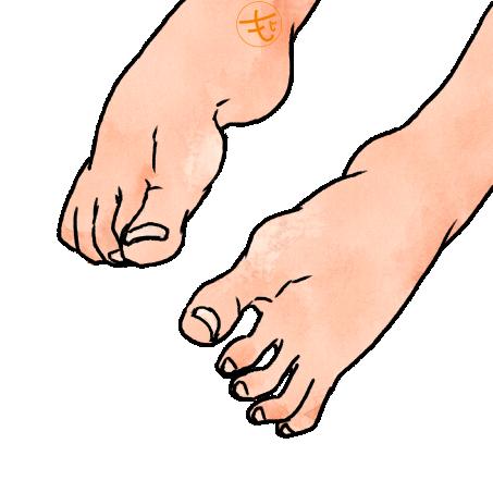 外反母趾のイラスト
